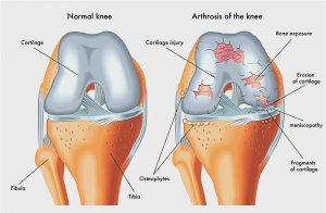hogyan lehet kezelni a csukló artrózisát