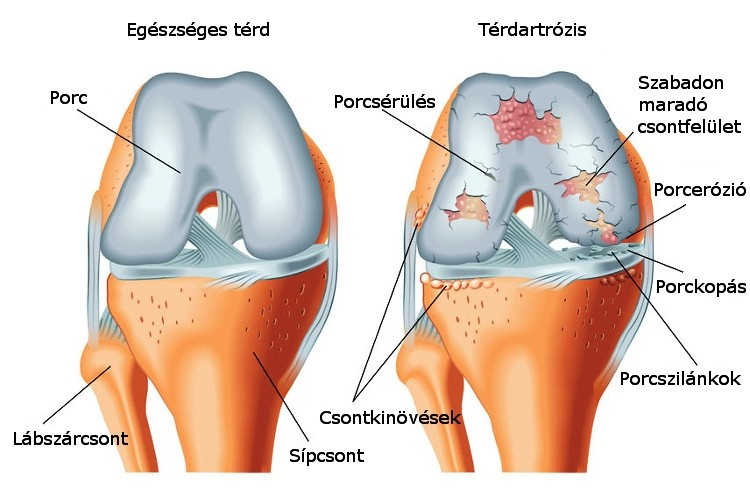 iliotibial tract friction syndrome