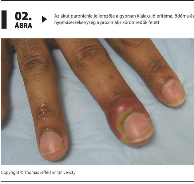 Az ujjgyulladás tünetei. Ínhüvelygyulladás 4 oka, 4 tünete, 5 kezelési módja [teljes útmutató]