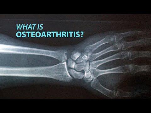 I. fokú ízületi osteoarthritis