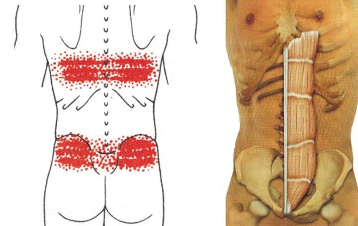 A lábak és a hát alsó része, A láb felemelésekor a csípőízület fájdalma
