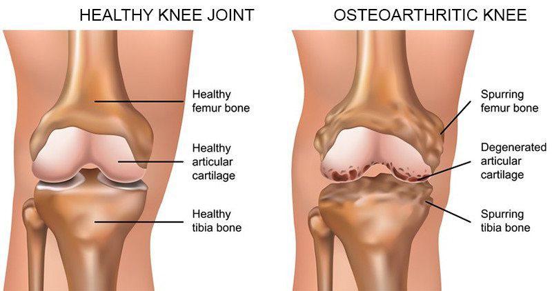 ízületi arthrosis 1 fokos kezelés térdízület fáj, mi az