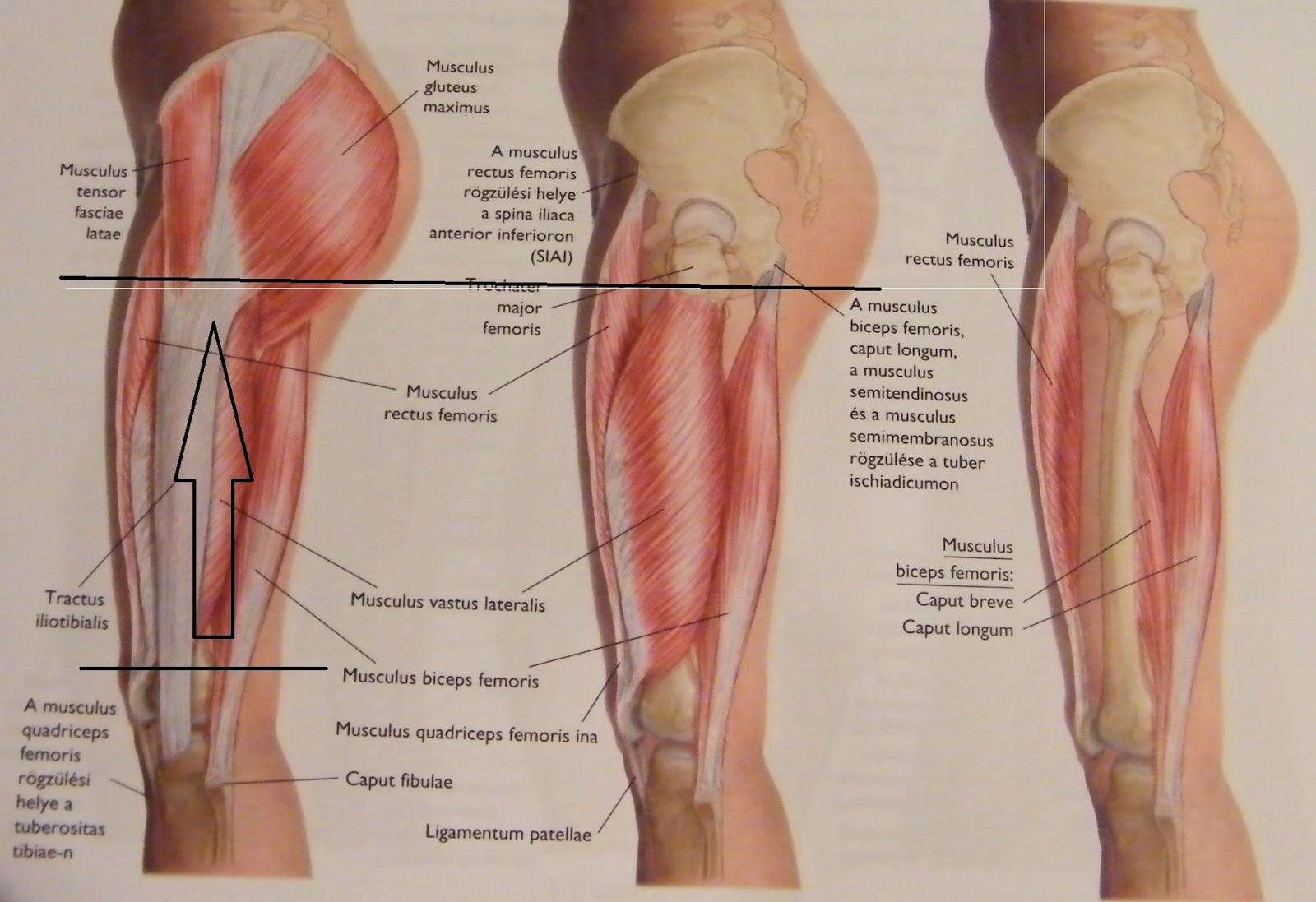 jobb lábba sugárzó fájdalom térdízületi meniszkusz törése artrózissal