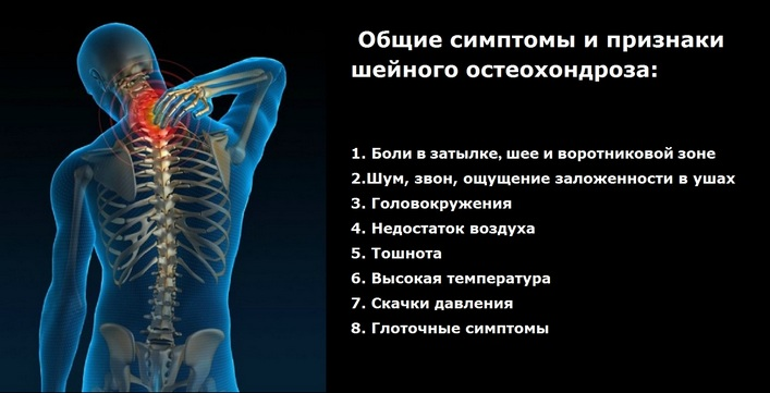 kenőcs a nyaki osteochondrozisról