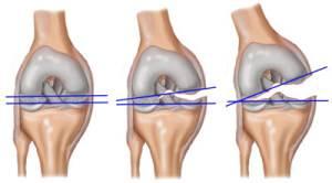 futás közben fájdalom a csípőízületben