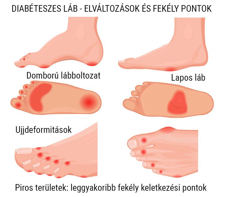 kis lábujj zsibbadás a lábak ízületeinek és érének kezelése