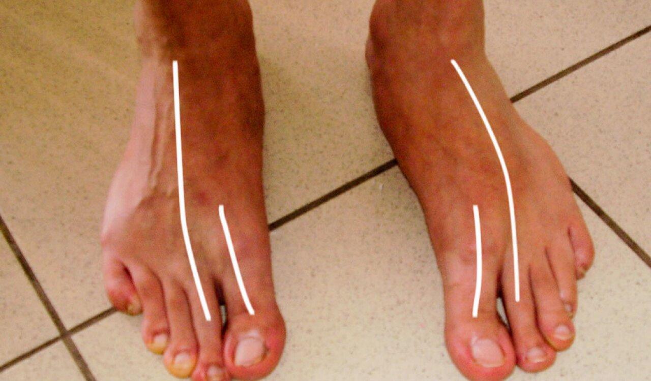 kis lábujj zsibbadás szegycsont ízületek sérülése