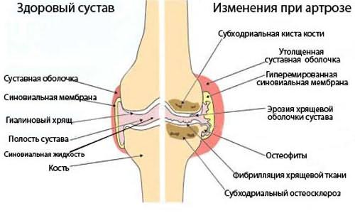 A nyáktömlő-gyulladás (burzitisz)