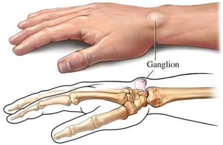 lábízület gyulladás sérülés után