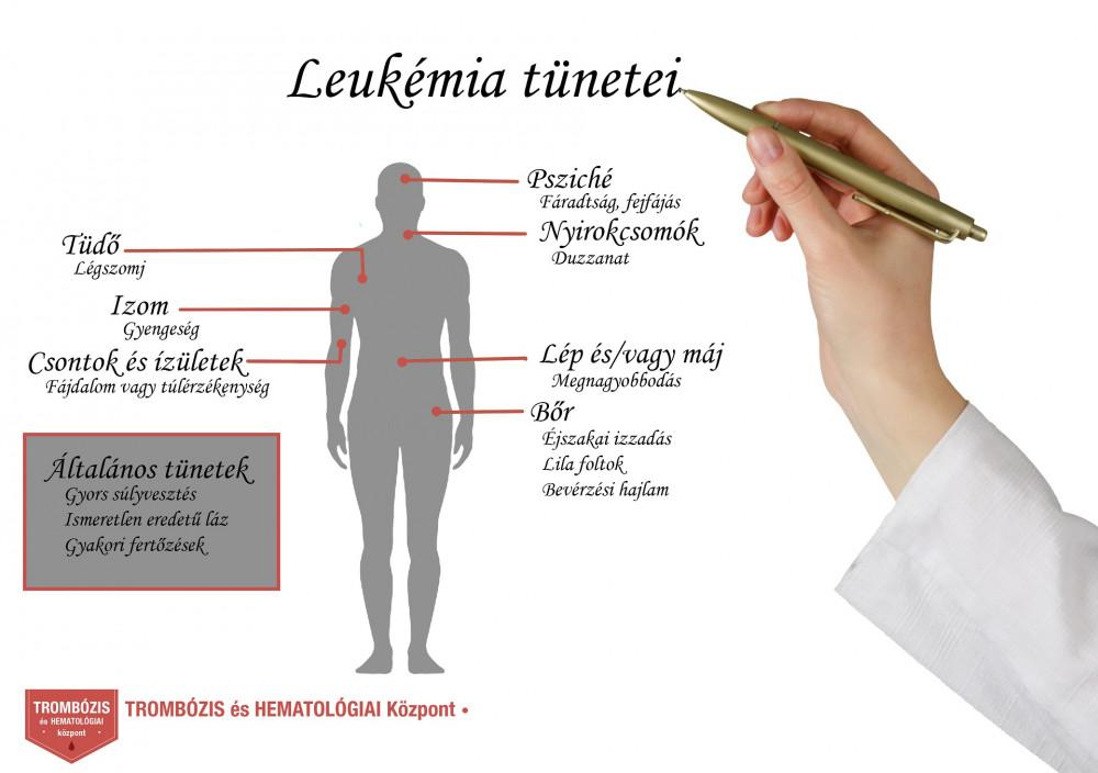 limfóma és fájdalom a csontokban és ízületekben burgonya ízületi kezelés