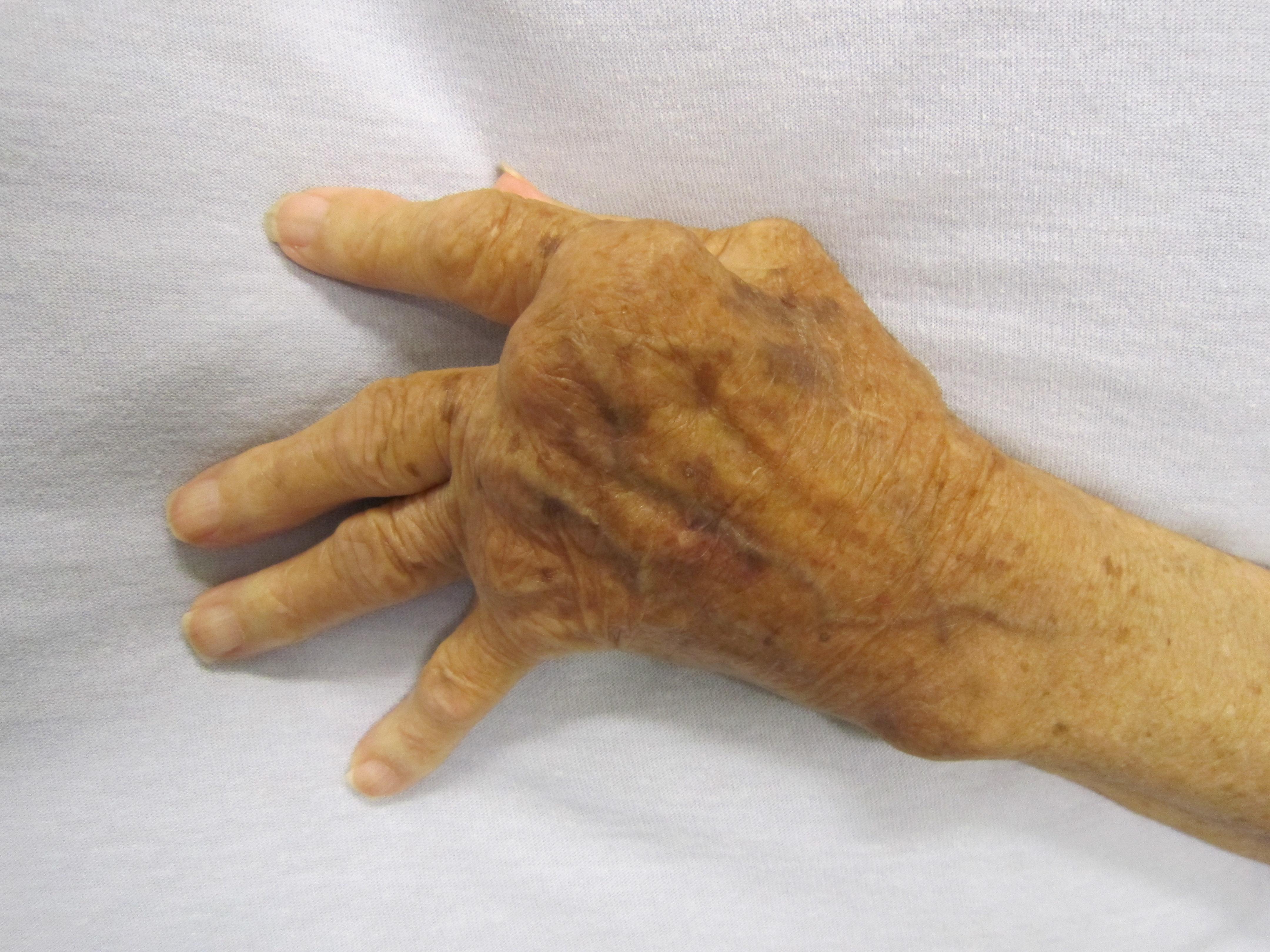 A limfómás esete a balszerencsével
