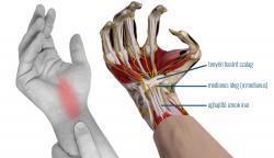 krónikus térdbursitis kezelés az artrózis legjobb receptje