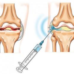 menü a boka ízület artrózisához