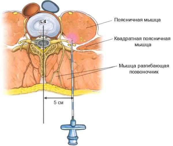 méhnyak és az ágyéki csontritkulás kenőcs
