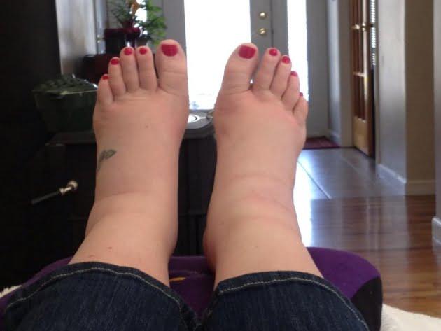 nehéz és duzzadt lábak