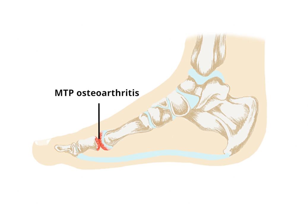 osteoarthritis 1st metatarsophalangeal joint