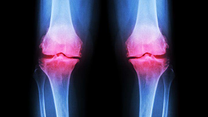 az osteoarthritis okai