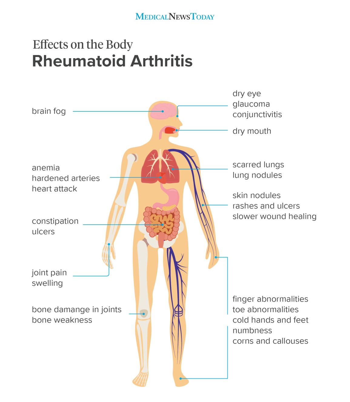 hogyan kezelhető a rheumatoid arthritis modern eszközökkel hogyan lehet a reumás ízületi gyulladást külföldön kezelni