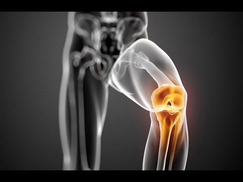 tinktúrák osteoarthritis kezelésére
