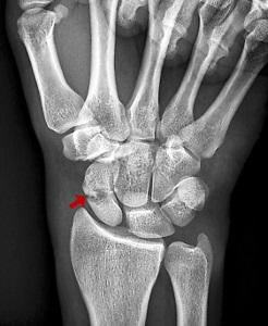 az ízületek és a hátizmok fájnak az artrózis kvh terápiás kezelése