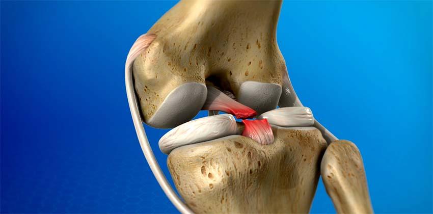 térd keresztező szalag sérülései olcsó kenőcsgél ízületi fájdalmak kezelésére