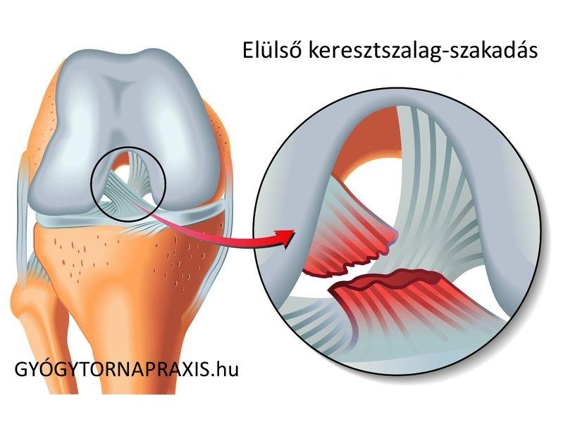 térd szalag sérülések tünetei