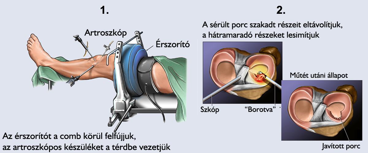 térdízület-kezelés repedése ízületi gyulladás térdízületi kezelés 1. fokozatú kezelés