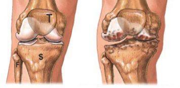 térdízület és sarok artrózisa ütés a könyök ízületi gyulladáson