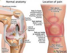 kenőcs ízületi fájdalmak ellen
