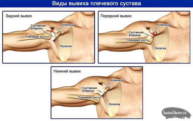vállízület károsodása fájdalom, rángatózó térdízület