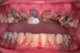 ízületek és fogak betegségei