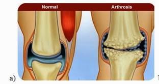 ízületi arthrosis 1 fokos kezelés fájdalom a vállízületben légzés közben