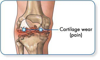 Osteoarthritis   Lab Tests Online-HU