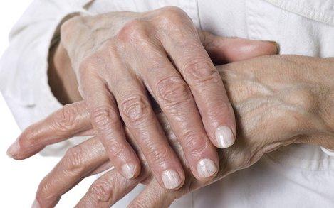ízületi fájdalmak kenőcsének árai csípőfájás, amikor a bal oldalon ül