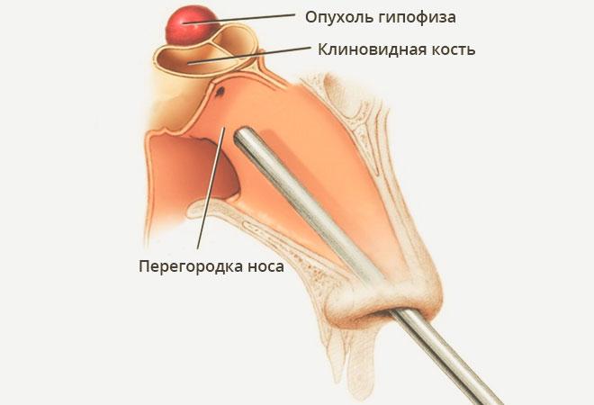 ízületi fájdalom hormonális kudarca izületi fájdalomcsillapító gyógyszer