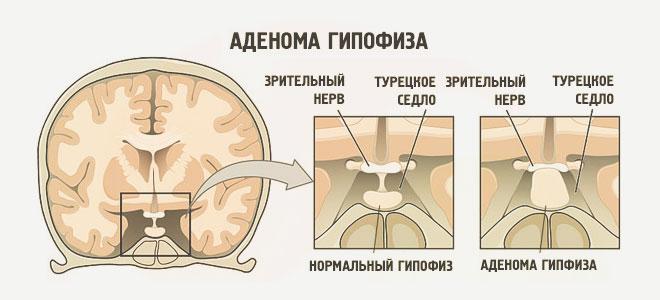 ízületi fájdalom hormonális kudarca a térdízület 1. fokozatának pattanása