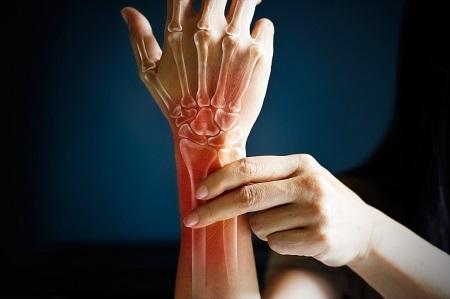 térdfájdalom csontritkulás