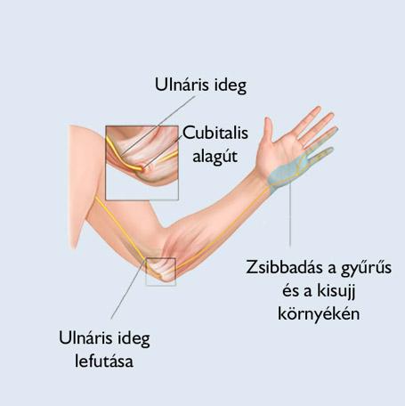 Kézsebészet - Kelen Kórház