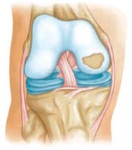 a csípőízület 3. fokozatú artrózisának kezelése ízületek heveny gyulladása