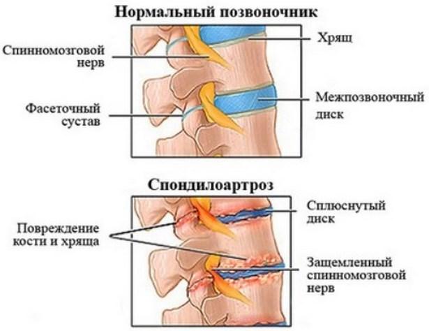 ízületi kondroprotektív kezelés fájó lábak a bokaízület körül