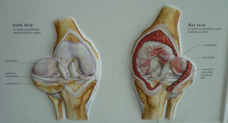 gyógyszer a kézízületi betegség kezelésére a vállízület polyarthritis hogyan kezelhető