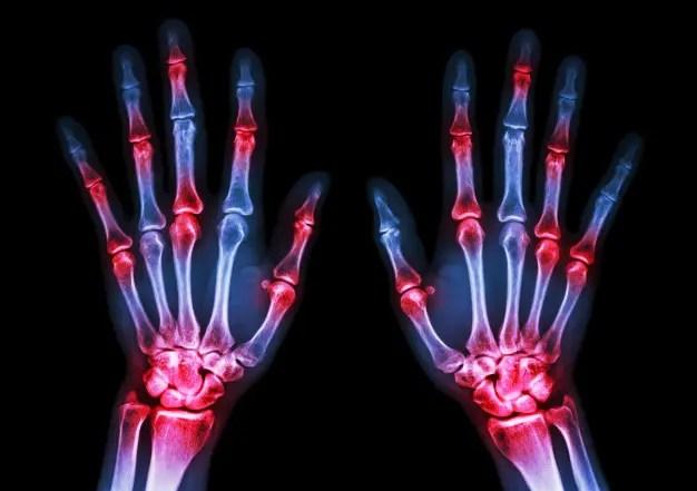 A reumatoid artritisz kialakulása és kezelése