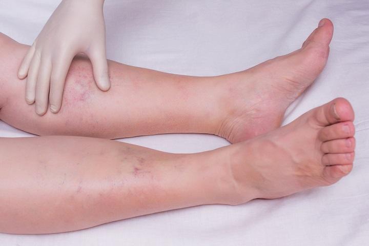 ízületi és lábfájdalom tünetei