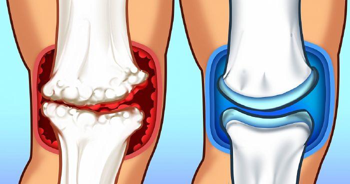 ízületi sós kezelés otthon az ízületek fáj, mint egy sprain