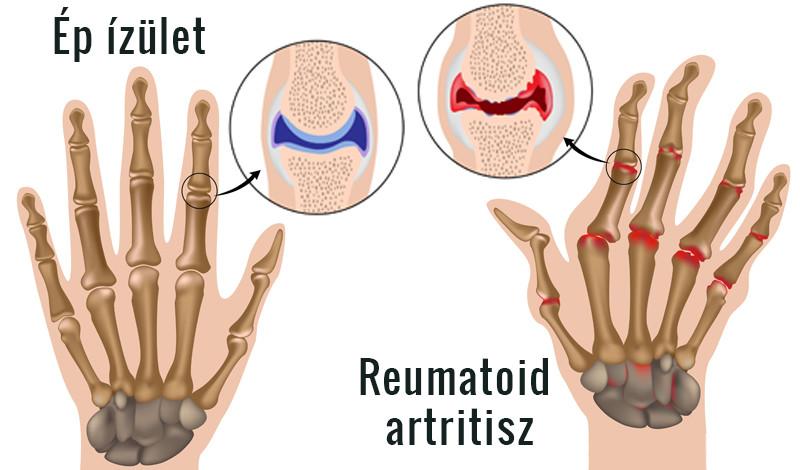 hogyan lehet enyhíteni az ízületek duzzanatát rheumatoid arthritisben
