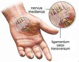 hüvelykujj fájó ízület