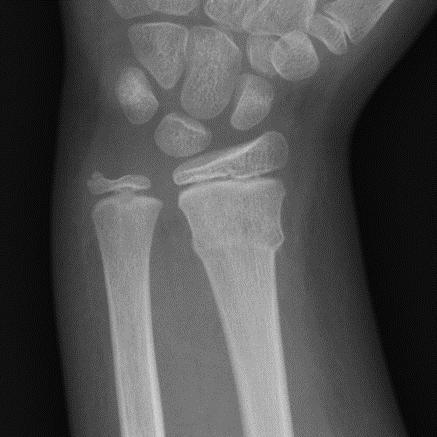 Radiológia | Digitális Tankönyvtár