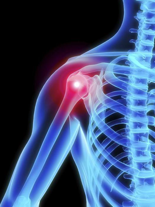 vállízület osteoarthritis hogyan kezelhető ízületi gyulladás a sérülés kezelése után