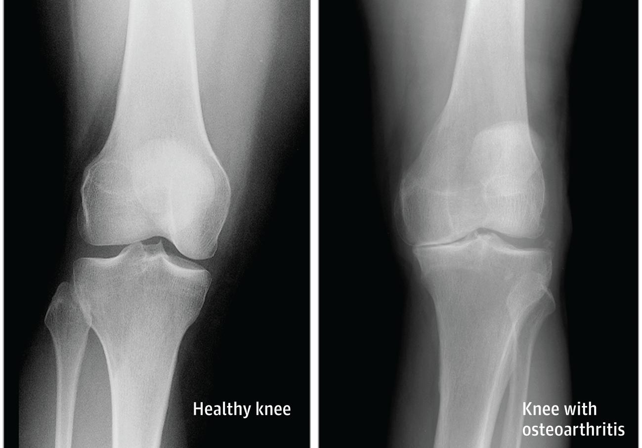térdízület artritisz prognózis kezelése térdfájdalom kívül