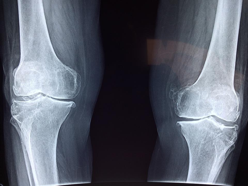 ízületek lábakon fájdalom pszichoszomatika